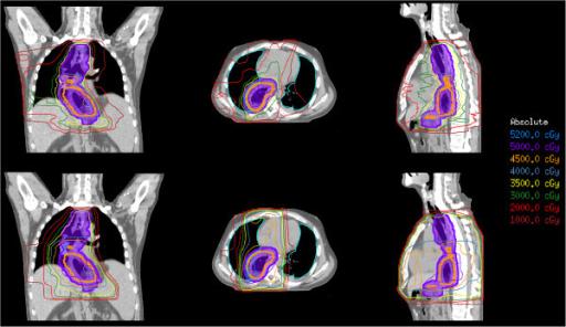 Intensity Modulated Radiation Therapy Blue Ridge Radiation