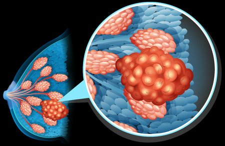 example of lobular breast cancer