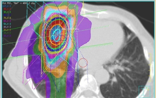 Example of SBRT dose distribution. Image courtesy of Open-i Biomedical Images.