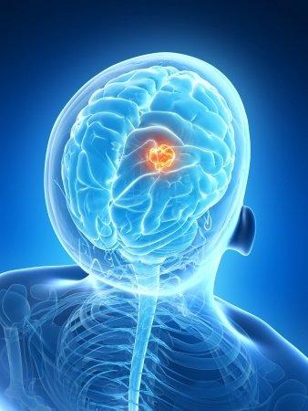 Brain tumor concept