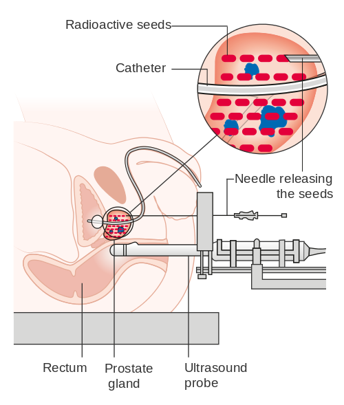 Prostate seed implant diagram. Image courtesy of Cancer Research UK.
