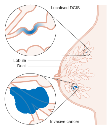 Diagram showing Ductal Carcinoma in situ as well as invasive. Image courtesy of Cancer Research UK.