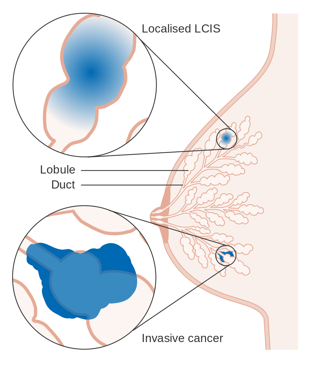 Diagram showing localized lobular carcinoma as well as invasive. Image courtesy of Cancer Research UK.